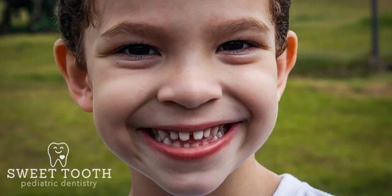 Teeth Discoloration in Kids
