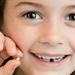 Loss of Baby Teeth