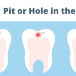 Pit or Hole in the Teeth