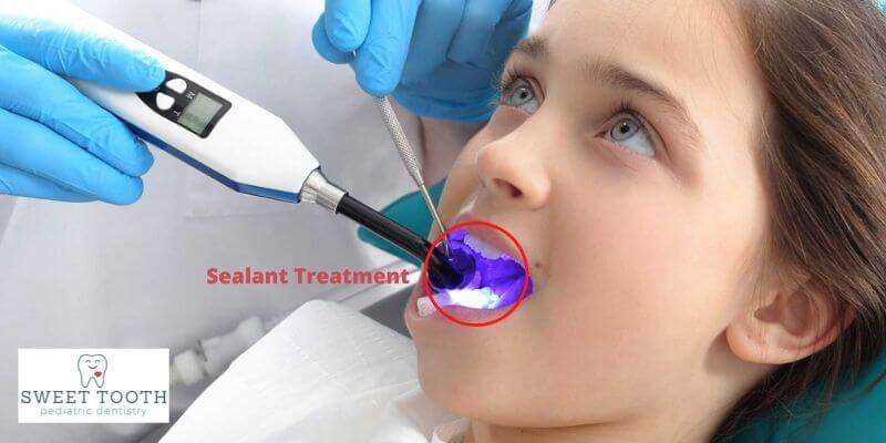 When Should I Take My Child For Sealant Treatment