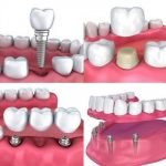 What Is Restorative Dentistry_