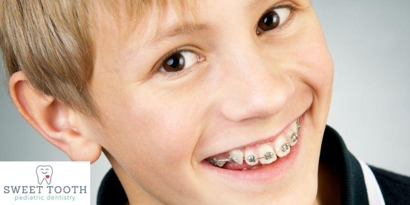 children braces weston florida