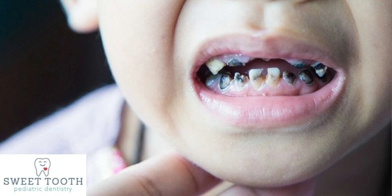 Common Dental Problems In Kids And Their Treatments