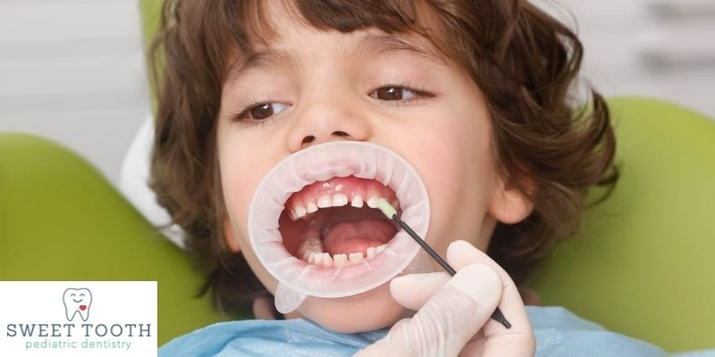 pediatric fluoride treatments