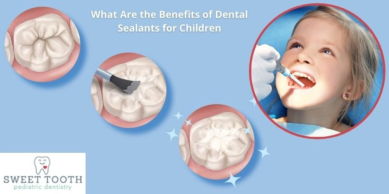 What Are the Benefits of Dental Sealants for Children